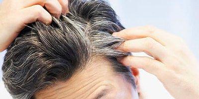 come curare la cute dei capelli con olio di oliva