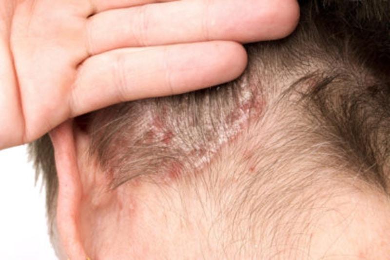 Olio di Oliva, rimedio utile alla Dermatite Seborroica