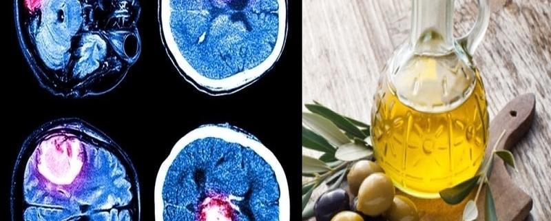 Con l'Olio Evo è possibile prevenire l'Ictus, uno studio lo dimostra!
