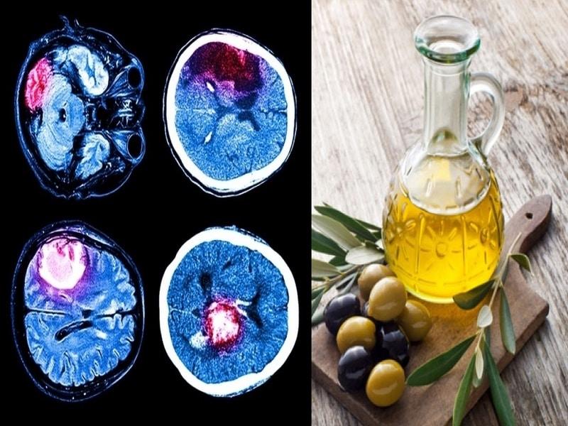 Prevenire l'Ictus con l'olio di oliva? Uno Studio lo dimostra!