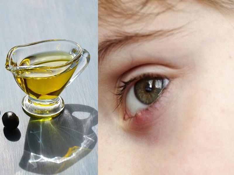 Olio di Oliva per la cura dell'Orzaiolo: un rimedio naturale tutto da scoprire