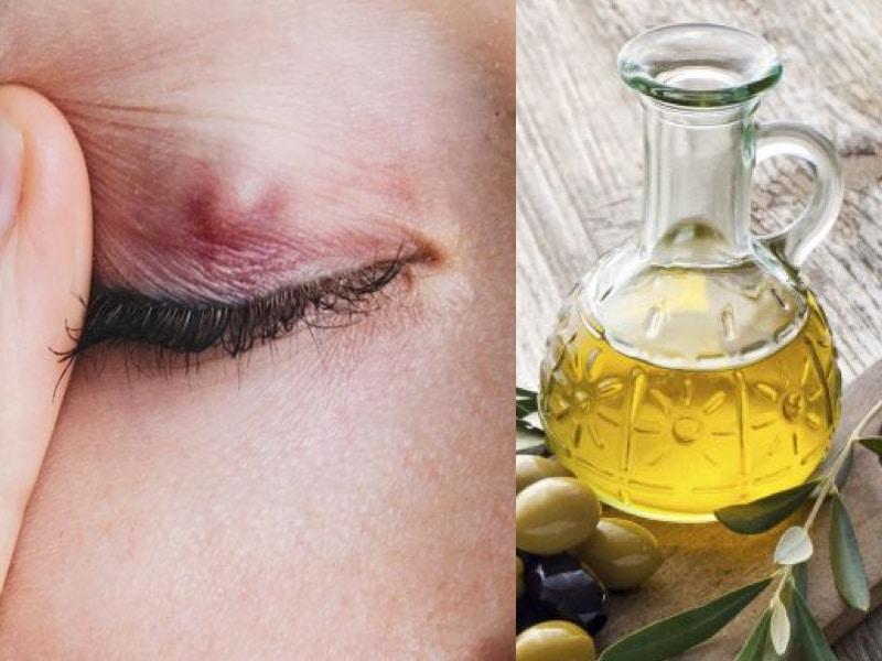 Olio di Oliva e Calazio: un ottimo rimedio naturale