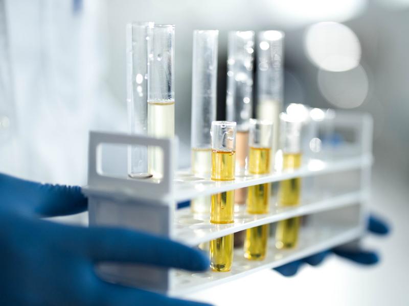 Feofitina e pirofeofitina: quanto i pigmenti dell'olio sono importanti?